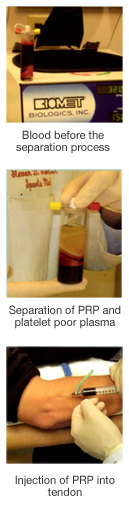 Three-step process for PRP therapy
